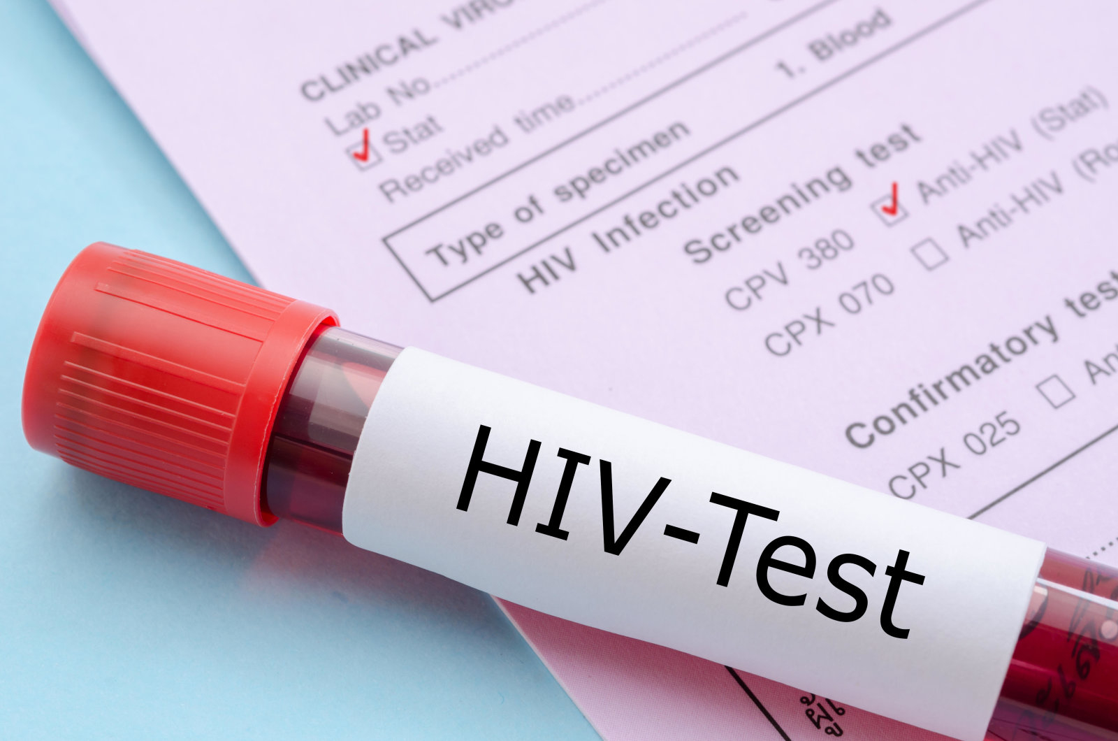 FATY6K Sample blood collection tube with HIV test label on HIV infection screening test form.