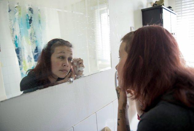 Catt Gallinger, qui a eu une injection bâclée dans l'oeil, essuie son oeil dans sa salle de bains à Ottawa...