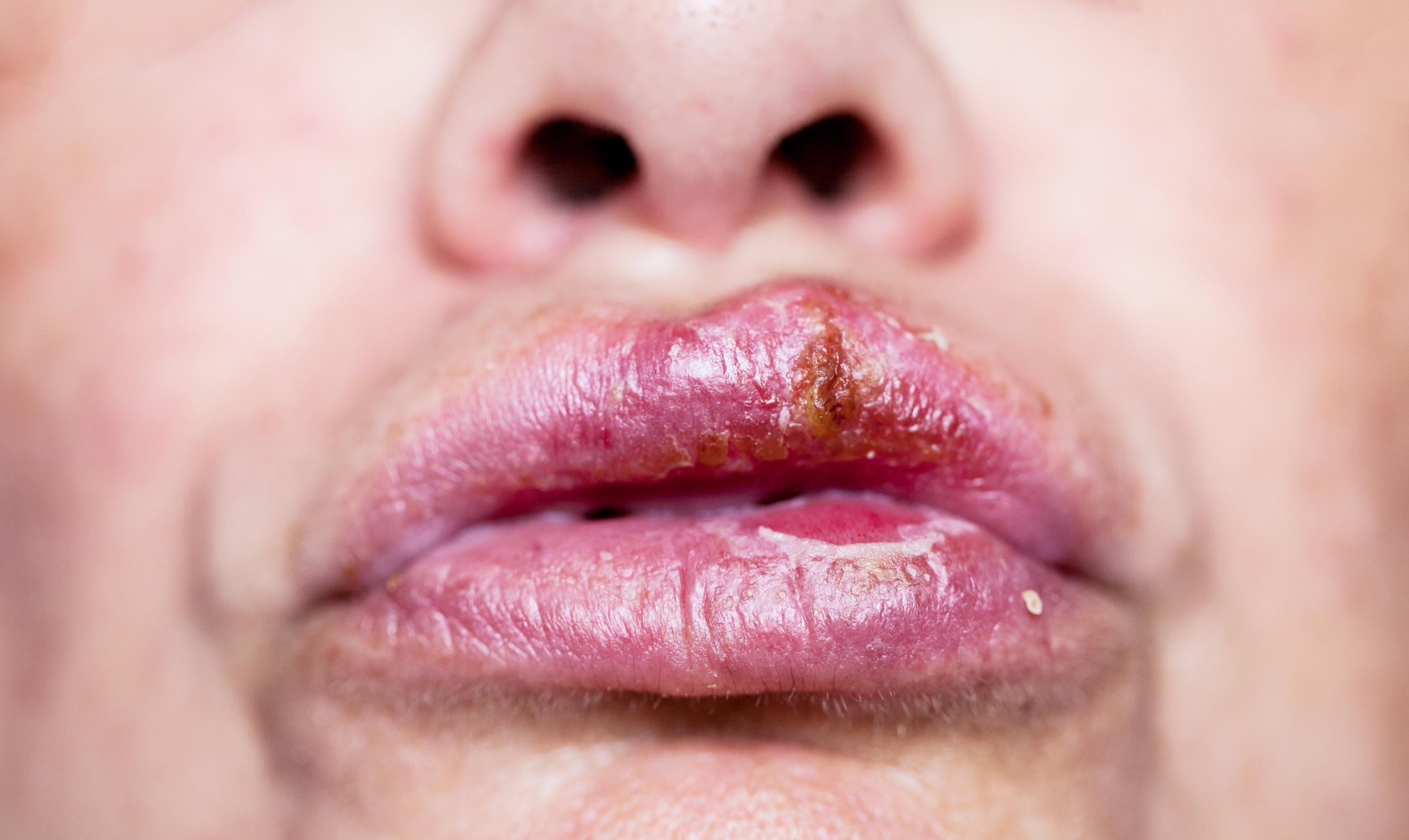 Symptoms mouth sores hiv
