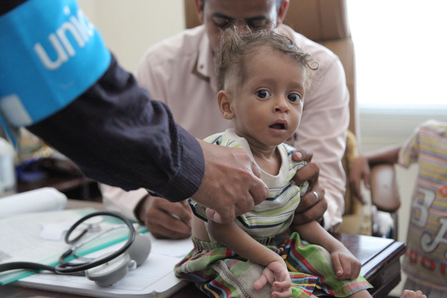 Le jeudi 20 octobre 2016 : Un garçon passe un test de dépistage de la malnutrition à Saada, au Yémen....