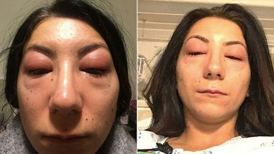 Womans Eyes Are Nearly Swollen Shut After Getting Eyelash