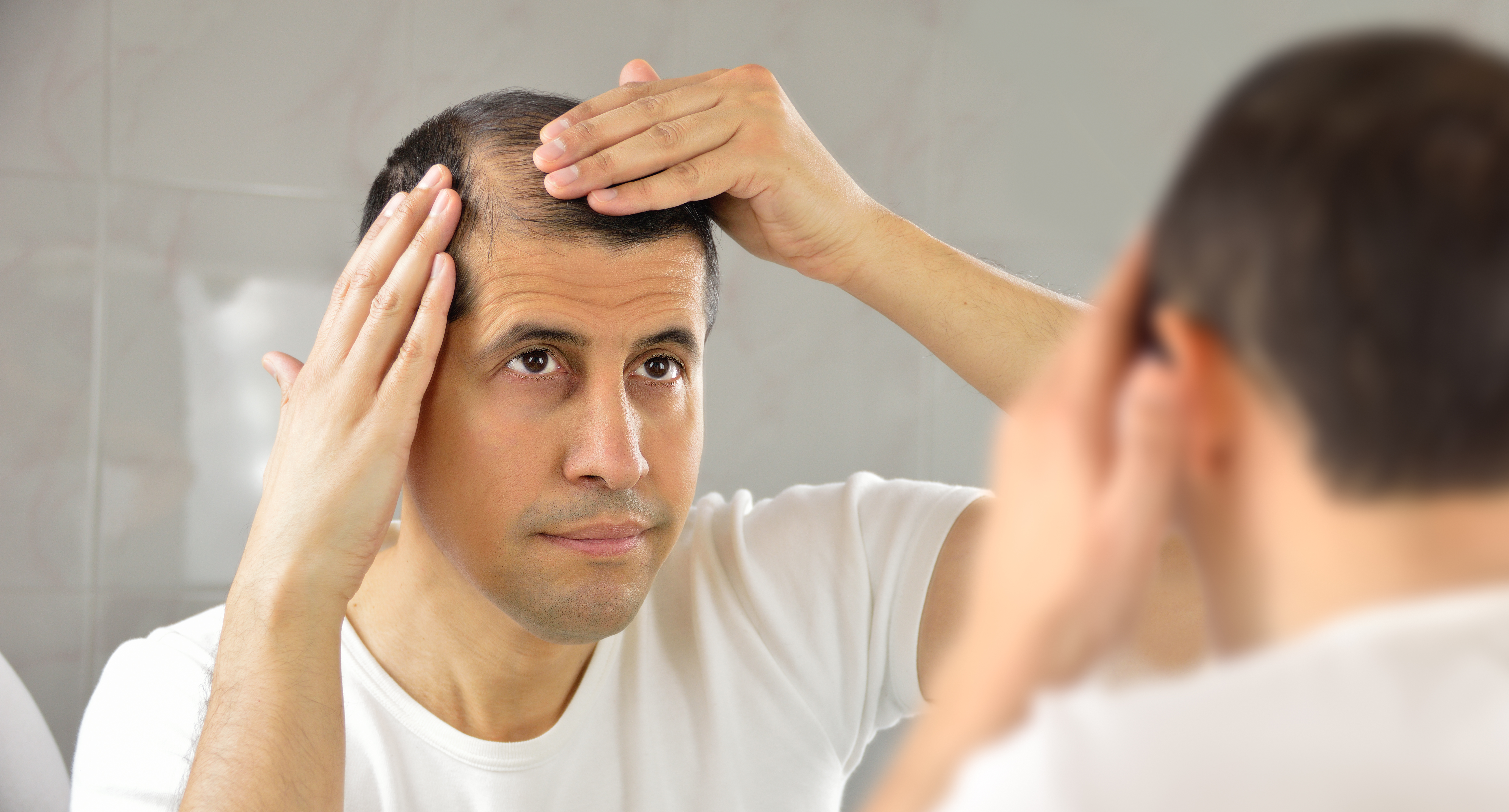 The only things that actually cure baldness, according to