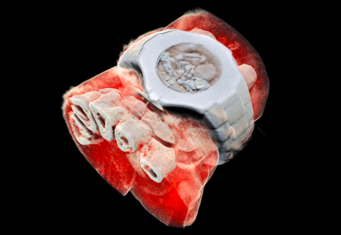 Scientists develop the world's first 3D color X-rays