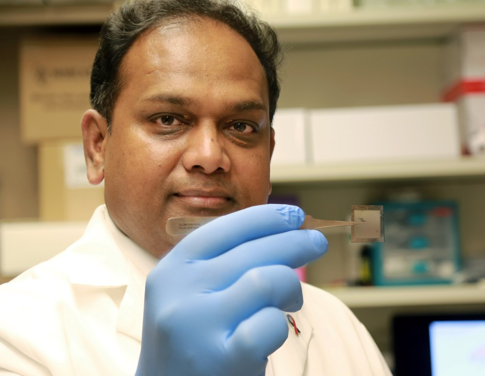 Chandan Sen, PhD, holds a chip that could revolutionize medical care. In laboratory tests on mice at The Ohio State University Wexner Medical Center, the chip was able to heal serious wounds with a single touch by converting skin cells into vascular cells.