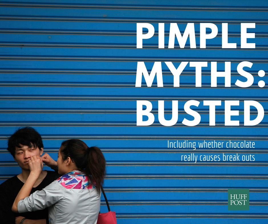 Does Chocolate Give You Pimples? And Other Acne