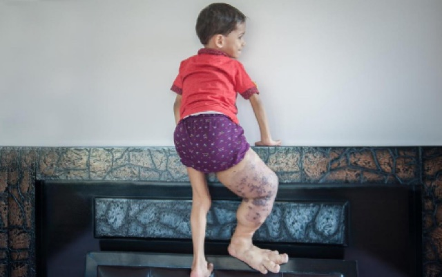Born different: The little boy with a giant leg