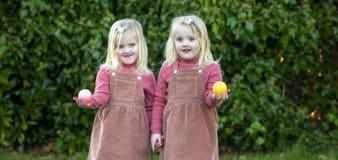 Meet the asymmetrical 'mirror-image' twins